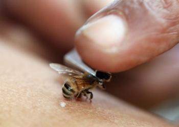 Апирефлексотерапия (пчелоужаление)