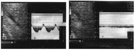 Особенности внутрисердечного и внутриорганного кроватока при избранных позах человека