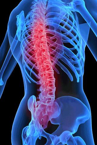 психосоматика спины