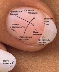 Значение отметок на ногтях